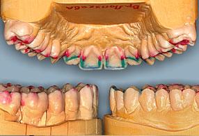 отбеливание зубов тверь